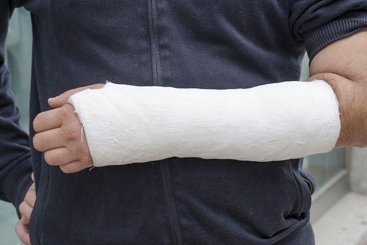 man in cast